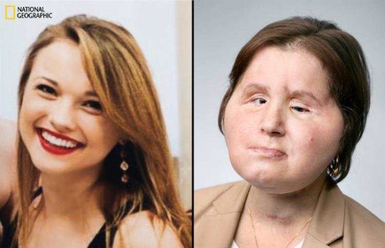 Una mujer de 21 años se convierte en la más joven de los EE. UU. en recibir un trasplante de cara
