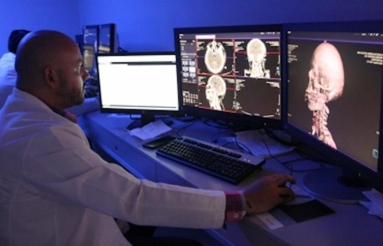 Descubren papel clave de la respiración en la oxigenación del cerebro
