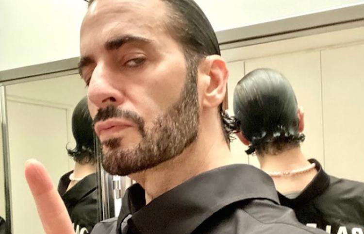 Marc Jacobs muestra parte de lo que fue su cirugía facial