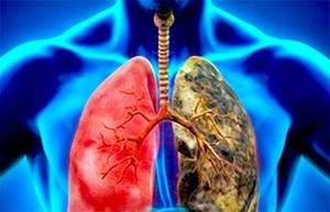 En México, tratar cáncer de pulmón es ocho veces más caro que el de mama