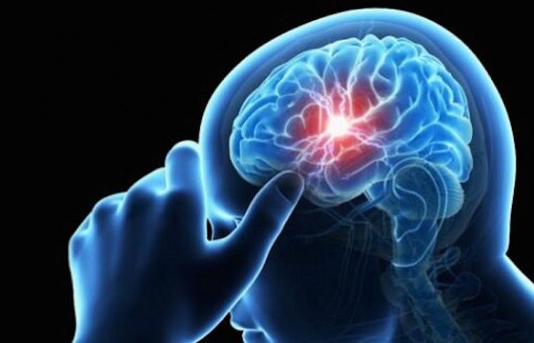 Conoce los tipos de disfunción cerebral